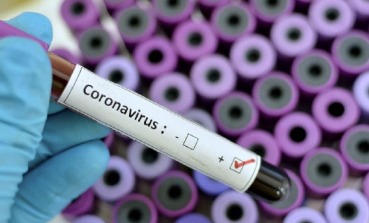 Coronavirus, ottantacinque i nuovi positivi in tutta la Sicilia