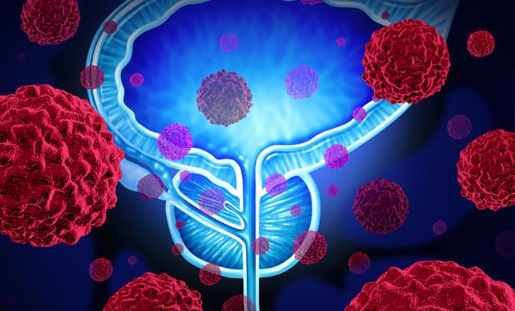 Tumore della prostata in crescita, adesso è il più frequente in Europa