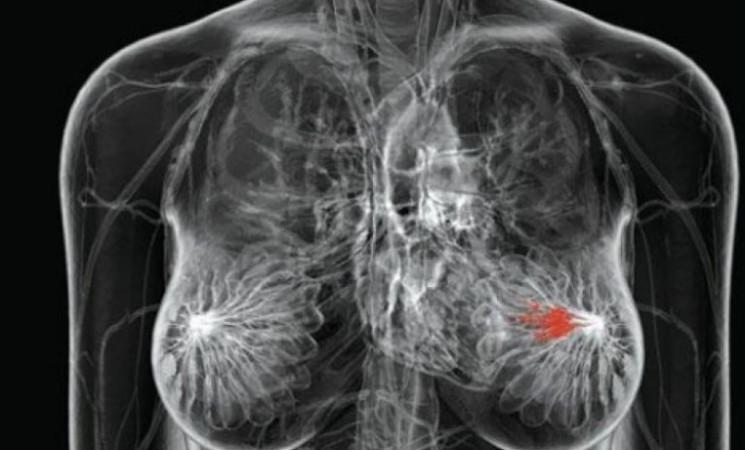 """MicroRNA , scoperte """"molecole bersaglio"""" contro il cancro al seno"""