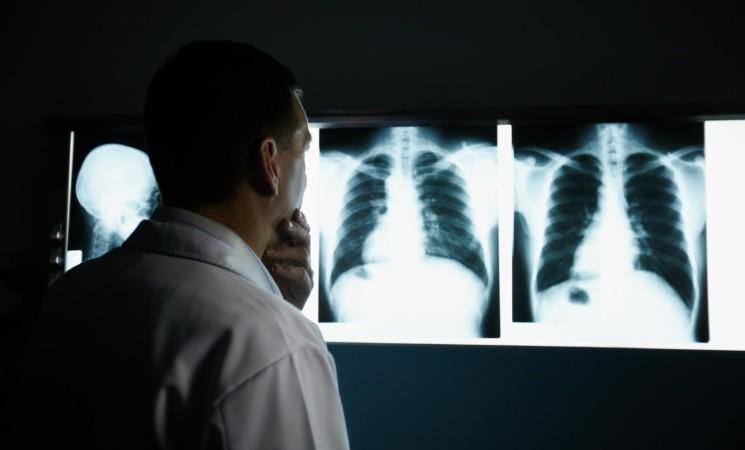 Esami radiologici, il 60% degli italiani non riceve informazioni utili