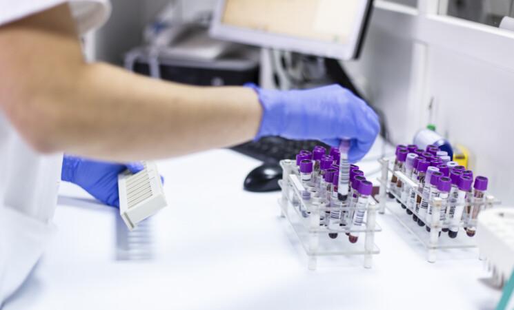 Origine del Covid, scoperte sequenze virus cancellate da ricercatore cinese