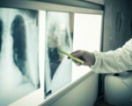 Cancro, un milione di casi non diagnosticati in Ue per il Covid