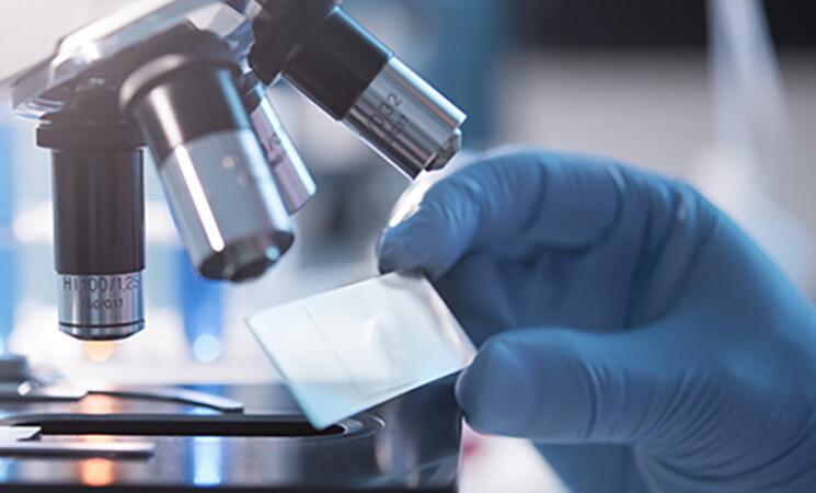 Aifa, monoclonali a 80 pazienti in 7 giorni, in ricrescita