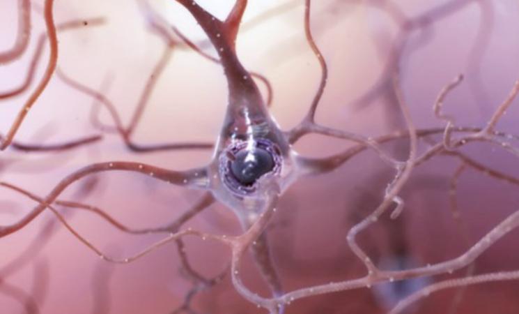Sla, trovato un enzima chiave per mantenere i neuroni integri